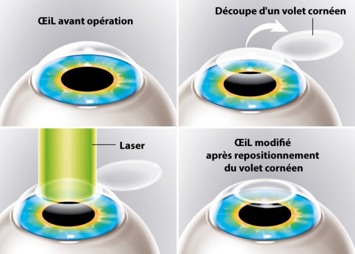 Chirurgie laser myopie